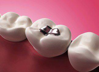 amálgama dentária