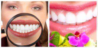 dentes bonitos e saudáveis